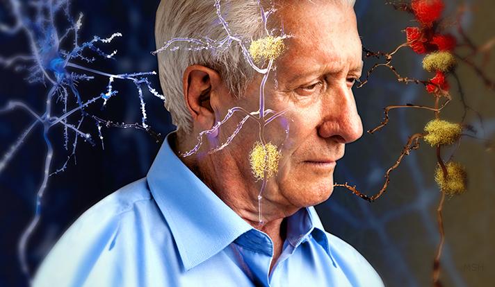 Alzheimer-Negative